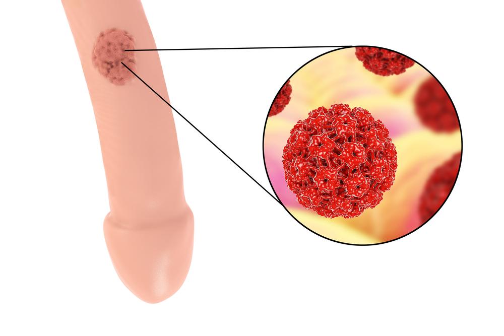 papilloma virus sintomi nell uomo)